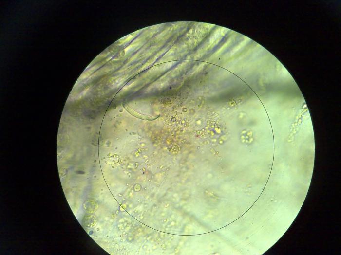 Coccolithophore