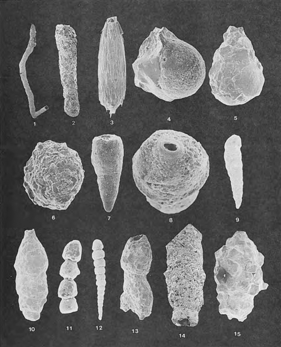 Foraminifera - Plate 1 - Astrorhizidae, Saccamminidae, Hormosinidae