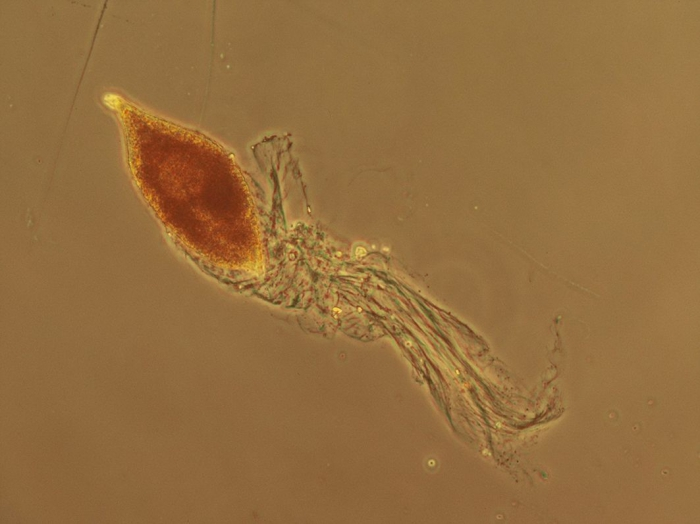 Gyrodinium