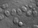 Fresh myxospores of Myxobolus klamathellus from subcutaneous cyst, author: Atkinson, Stephen