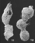 Subreophax aduncus (Brady) identified specimen