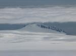 Teres Ridge