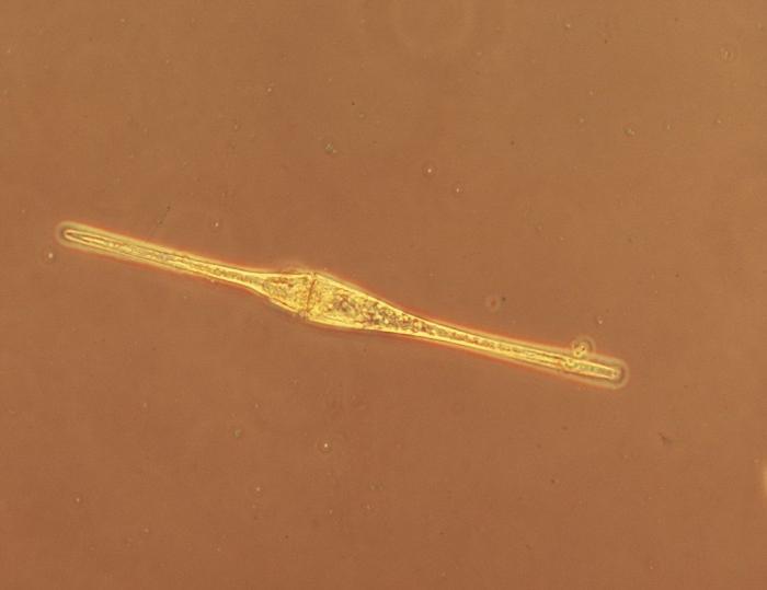 Ceratium fusus