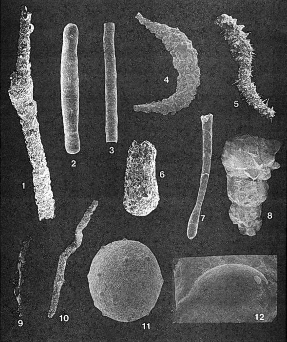 Forams -Plate 1- (Newfoundland)