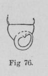 Eben (1884, figuur 76)