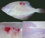 Skin ulcerations