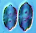 Chromista - Bacillariophyceae (diatoms)