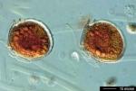 Onderzoeker Gabriel Orellana van de UGent onderzoeksgroep Milieutoxicologie heeft op staalname met de Simon Stevin deze zomer de dinoflagellaat Dinophysis rotundata gevonden. Een aanverwante soort van dit toxische fytoplankton, geïsoleerd uit onze kustwateren, wordt nu opgekweekt in het laboratorium om zo de geproduceerde toxines te kunnen onderzoeken. Weten onder welke omstandigheden deze toxines geproduceerd worden is een eerste stap om de risico's van toxische algenbloeien beter in te schatten.