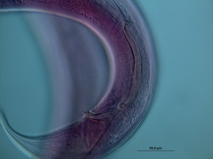 Dorylaimopsis sp., spicules
